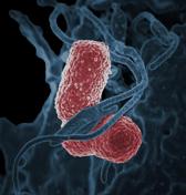 Klebsiella bacteria, NIAID